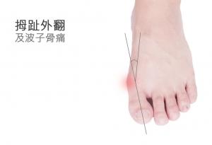 挑跑鞋前注意 後跟高度影響拇趾外翻