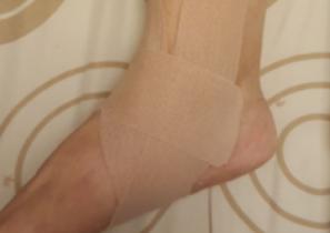 【傷痛防護】淺談內踝三角韌帶勞損:十年舊傷如何造就急性內踝疼痛?