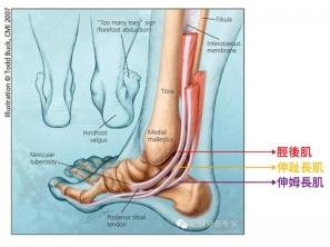 【傷痛防護】跑步後內踝疼痛?一個動作緩解脛後肌緊繃!