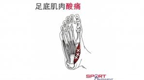 這唔係足底筋膜炎!4招分辨足底肌肉酸痛