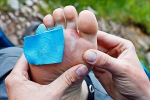 【戶外百科】足部水泡的預防與處理