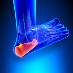 足底筋膜炎 Plantar fasciitis